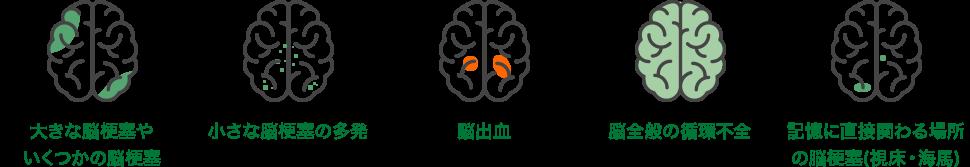 脳血管性認知症の症例